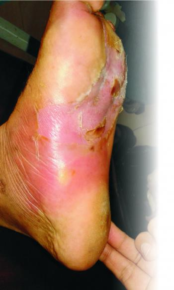 Ayurvedic Management of Diabetic Foot